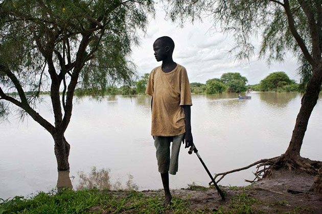A young boy on the banks of the Gilo River, Jonglei State.  His leg was amputated due to lack of care after being bitten by a snake. Access to health care is a major challenge for South Sudan.