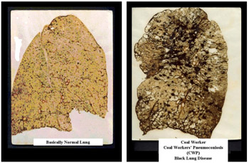 Black lung leaves miners' lungs scarred, shriveled, and black. A normal lung (left) and a diseased lung (right.) Photo by NIOSH